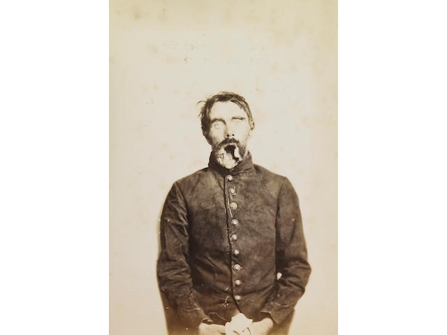 [CIVIL WAR—MEDICAL PHOTOGRAPHY .]