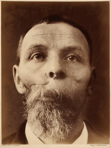 Félix Méheux Untitled medical study (a man's face);