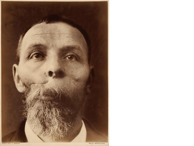 Félix Méheux Untitled medical study (a man's face);