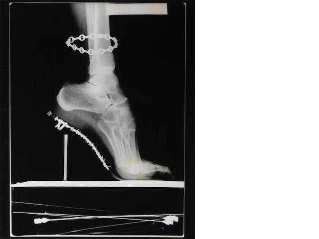Helmut Newton (German, 1920-2004); X-Ray of High Heeled Shoe and Cartier Bracelet, Paris;