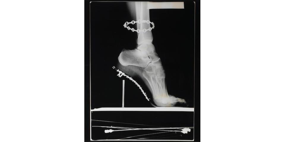 Helmut Newton (German, 1920-2004); X-Ray of High Heeled Shoe and Cartier Bracelet, Paris;
