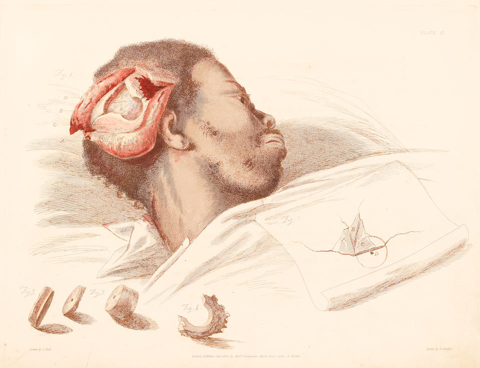 BELL, CHARLES, SIR. 1774-1842. Illustrations of the Great Operations of Surgery, Trepan, Hernia, Amputation, Aneurism and Lithotomy. London: Longman, Hurst, et al, 1821.