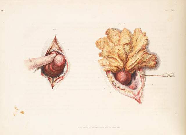 BELL, CHARLES, SIR. 1774-1842. Illustrations of the great operations of surgery, trepan, hernia, amputation, aneurism and lithotomy. London: Longman, Hurst, et al, 1821.<BR />