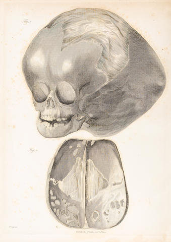 BAILLIE, MATTHEW. 1761-1823. A Series of Engravings, Accompanied with Explanations, Intended to Illustrate the Morbid Anatomy of Some of the Most Important Parts of the Human Body. London: W. Bulmer & Co., 1803.