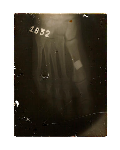 [HEMINGWAY, ERNEST. 1899-1961.] Three glass negative X-rays and a vintage developed x-ray photograph in original hospital file folder