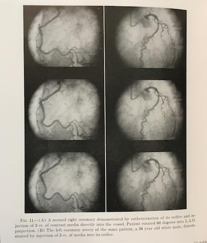 CORONARY ANGIOGRAPHY. SONES, F. MASON JR. 1918-1985; and EARL K. SHIREY. B.1924. A group of publications, comprising: